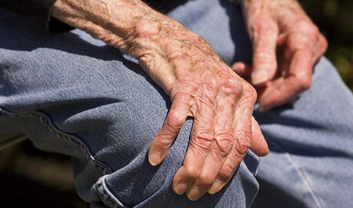 la artritis en personas mayores