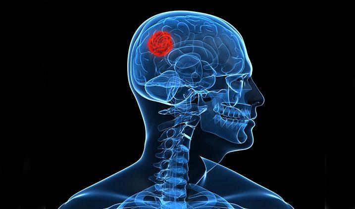 cáncer de cerebro detectado