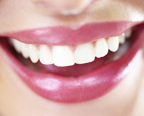 evitar la caries dental