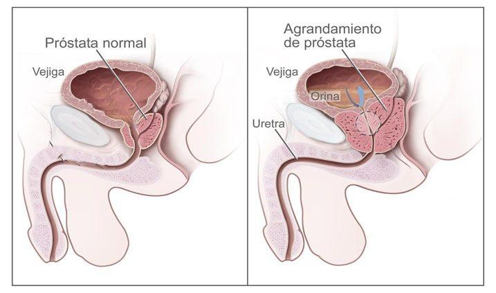 Situación de cáncer de próstata
